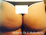 BodyFX Before & After Patient #3525