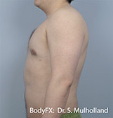 BodyFX Before & After Patient #3509