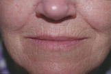 Fractora (RF Microneedling) Before & After Patient #3555