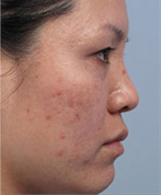 Fractora (RF Microneedling) Before & After Patient #3558