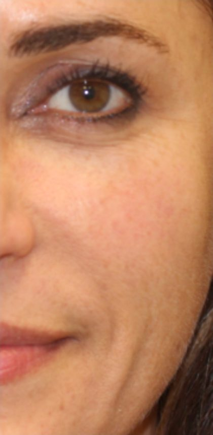 FotoFacial Before & After Patient #4660