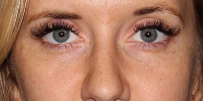 Fillers and Injectables Before & After Patient #5300