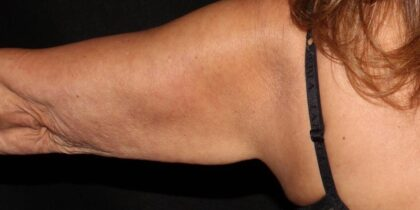 CoolSculpting Before & After Patient #5450