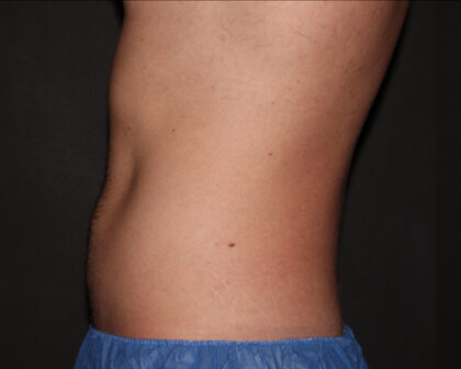 CoolSculpting Before & After Patient #5496