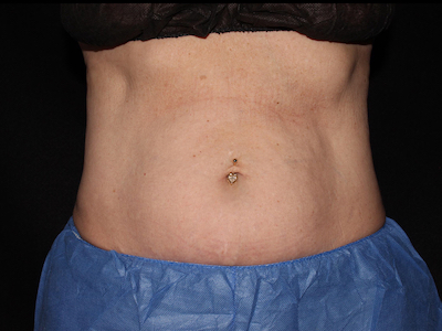 CoolSculpting Before & After Patient #5455