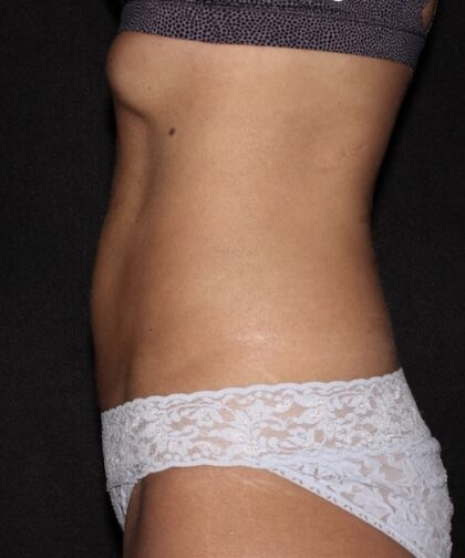 CoolSculpting Before & After Patient #5465