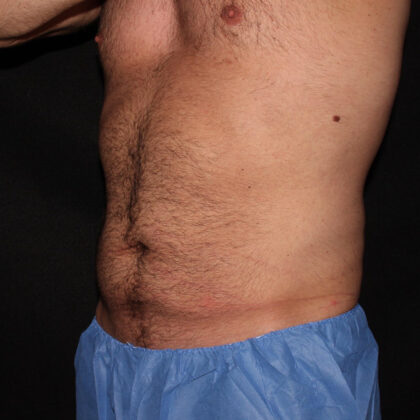 CoolSculpting Before & After Patient #5470