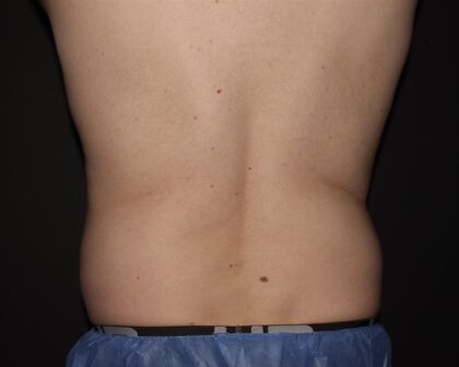 CoolSculpting Before & After Patient #5475