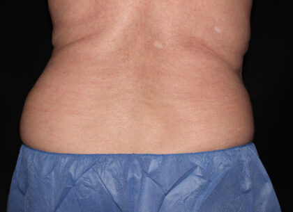 CoolSculpting Before & After Patient #5492