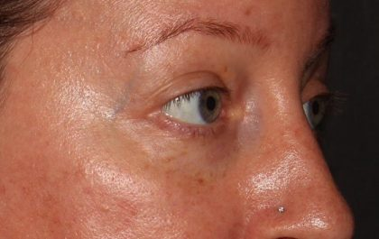 Fillers and Injectables Before & After Patient #5731